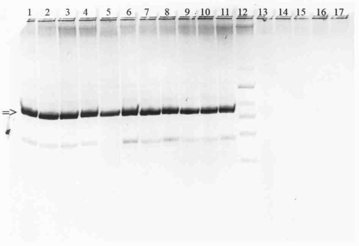 Способ видовой идентификации и дифференциации штаммов yersinia pseudotuberculosis от yersinia pestis и yersinia enterocolitica