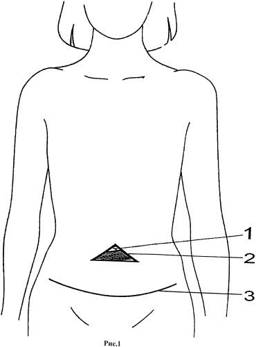 Способ сохранения пупка при абдоминопластике одновременно с удалением пупочной грыжи