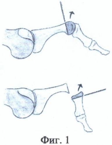 Артродез межфалангового сустава 1 го пальца стопа почему болят суставы и мышцы