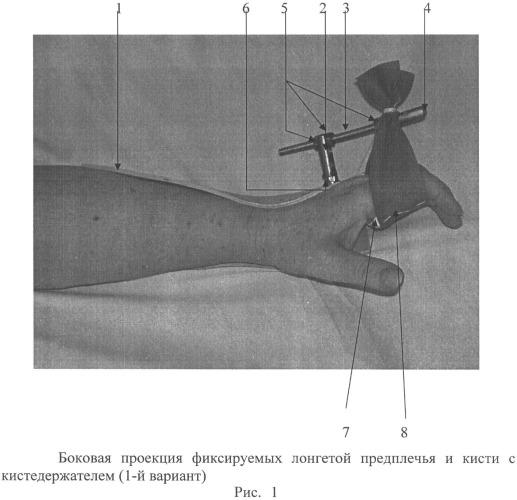 Устройство для разработки лучезапястного сустава и пальцев кисти