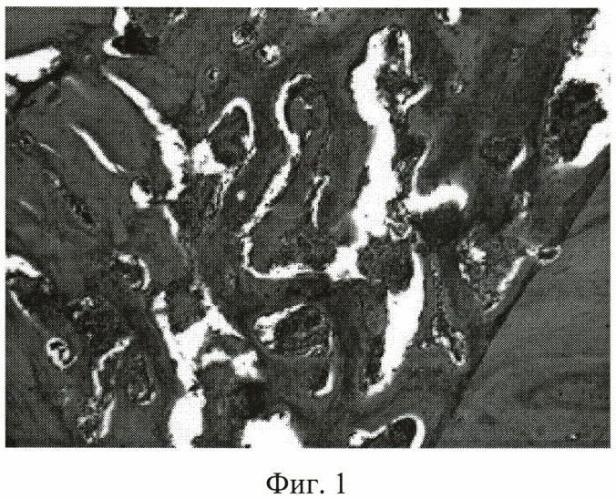 Способ дифференцированной стимуляции репаративной регенерации тканей при моделировании внутрисуставных переломов вертлужной впадины