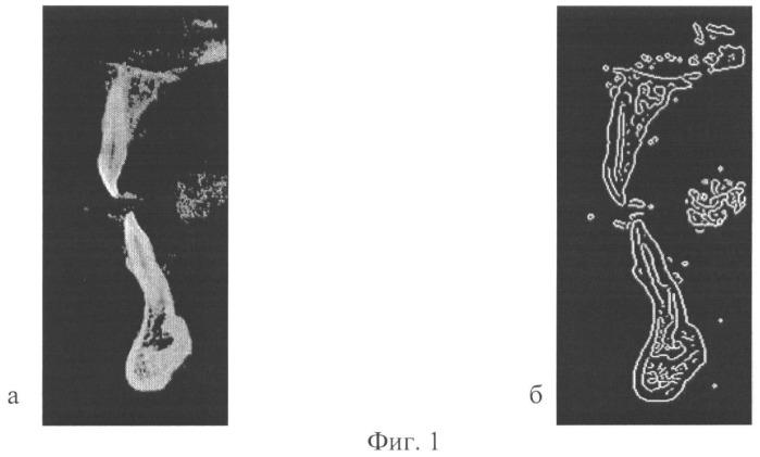 Способ определения площади патологических анатомических образований костных тканей по рентгеновским снимкам