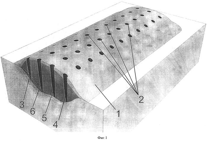 Способ коррекции гипертрофических и келоидных рубцов