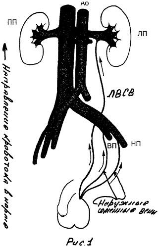 Способ диагностической флебографии при варикоцеле