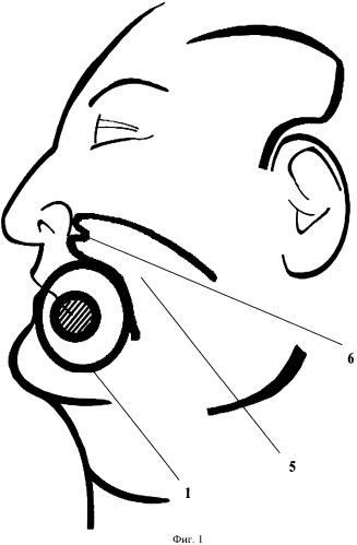 Способ пластики обширного сквозного дефекта мягких тканей щеки, угла рта, фрагментов верхней и нижней губы