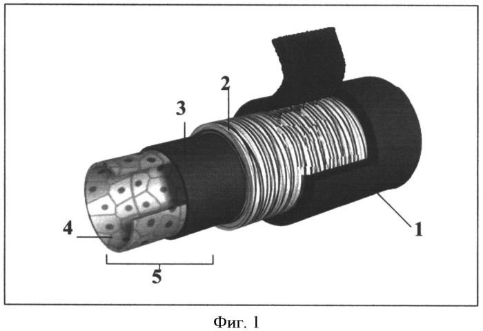 Способ хирургического лечения послеоперационных жгутовых парезов верхних конечностей