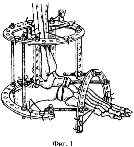 Способ остеосинтеза аппаратом орто-сув при деформациях среднего отдела стопы