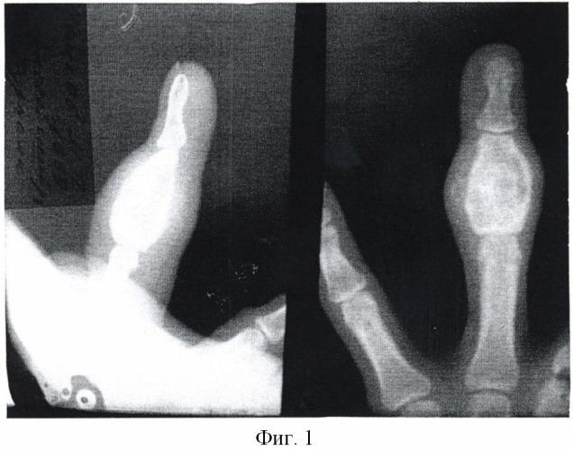 Способ лечения энхондром фаланг и пястных костей кисти
