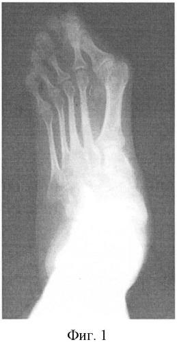 Способ лечения вальгусной деформации 1-го пальца стопы при детском церебральном параличе