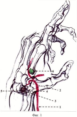 Способ фиксации васкуляризированного костного трансплантата на костях запястья