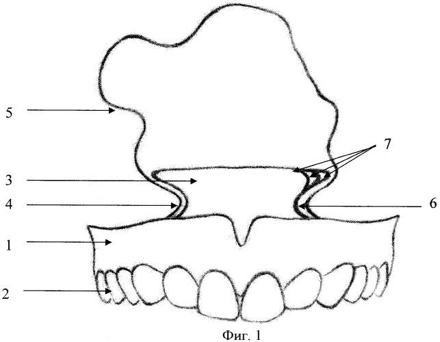 Верхнечелюстной протез-обтуратор
