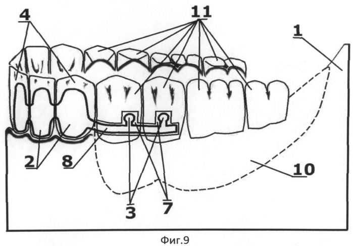 Способ фиксации в полости рта съемного зубного протеза