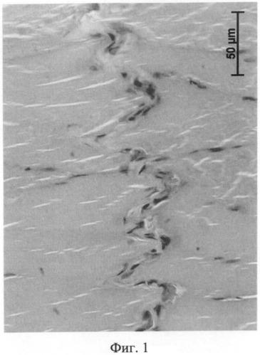 Способ восстановления кровотока в регионе тромбированной вены в эксперименте