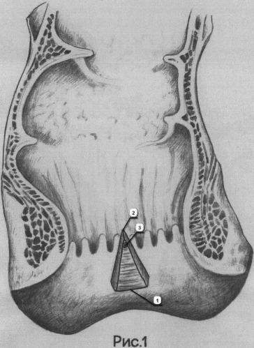 Способ оперативного лечения пациентов с экстрасфинктерными параректальными свищами