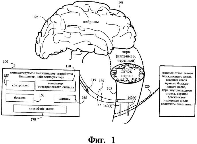 Способ лечения расстройств поджелудочной железы посредством устройства для нейростимуляции