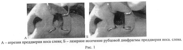 Способ лазерного восстановления носового дыхания