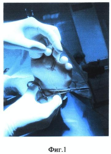 Способ коррекции когтеобразной деформации пальца стопы