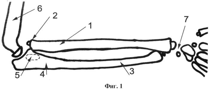 Способ артродеза проксимального лучелоктевого сочленения у детей с вялыми параличами верхней конечности
