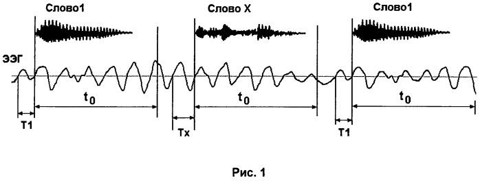 Способ активации речевых функций головного мозга