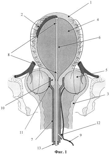 Двухбаллонный акушерский катетер жуковского
