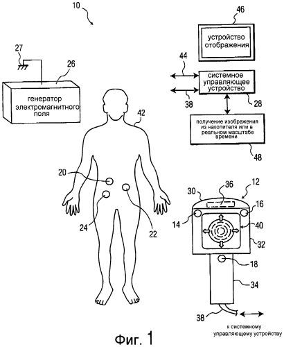 Способ и устройство для отслеживания положения терапевтического ультразвукового преобразователя