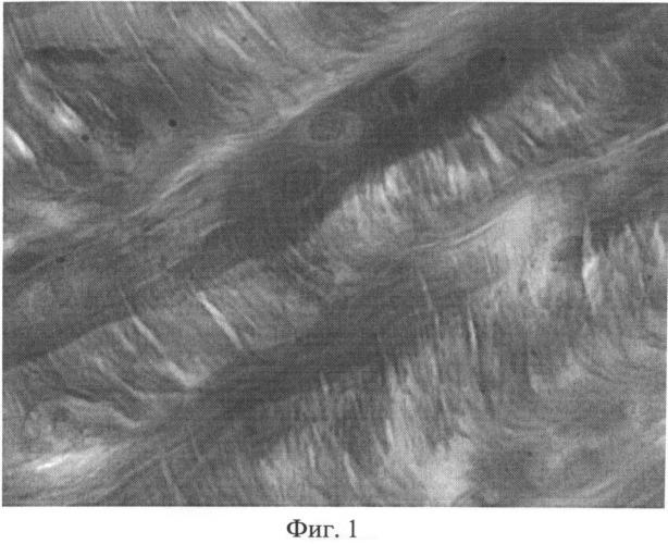 Способ выявления наличия системной реакции соединительной ткани, обусловленной развитием синдрома сочетанных дистрофически-дегенеративных изменений мезенхимальных производных при локальном хроническом воспалительном процессе