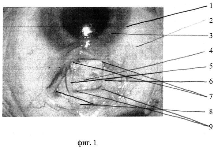 Способ фиксации склерального лоскута при антиглаукоматозных операциях