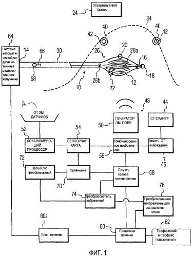 Электромагнитное обнаружение положения аппликатора для брахитерапии с высокой мощностью дозы