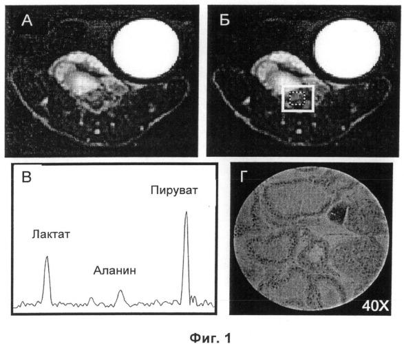 Магнитно-резонансные способы определения категории опухоли с использованием среды для визуализации, содержащей гиперполяризованный 13c-пируват