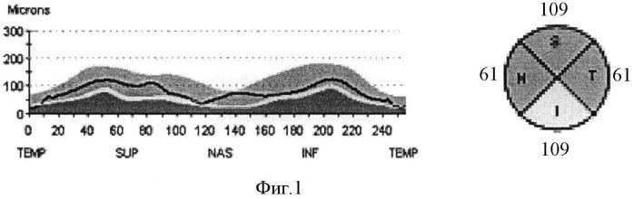 Способ определения показаний для лечения офтальмологических осложнений системного атеросклероза