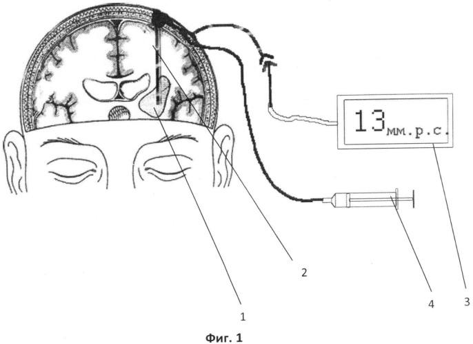 Способ лечения внутримозгового кровоизлияния головного мозга