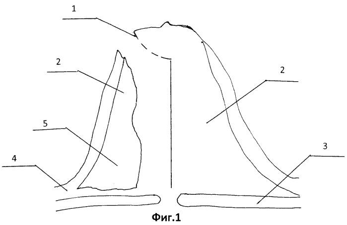 Способ коррекции формы тубулярной груди