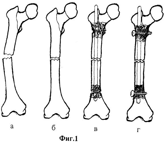 Способ лечения переломов трубчатых костей при выраженном остеопорозе