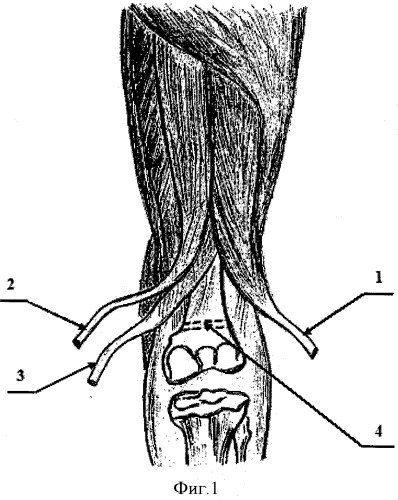 Способ хирургического лечения сгибательной контрактуры коленного сустава при нормопозиции надколенника у больных детским церебральным параличом