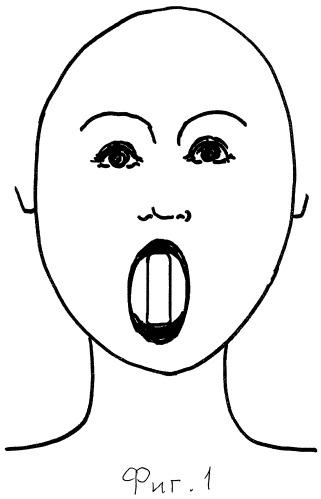 Способ восстановления мышечной активности и пластическое реконструирование контура лица и шеи с помощью тренажеров (варианты)