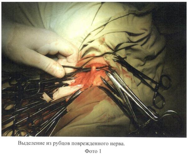 Способ лечения повреждений нервов