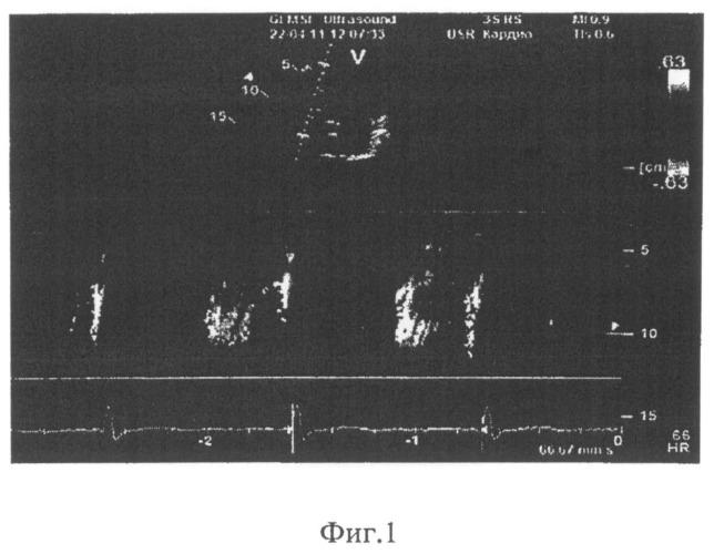 Способ диагностики диастолической дисфункции правого желудочка у больных хроническим легочным сердцем