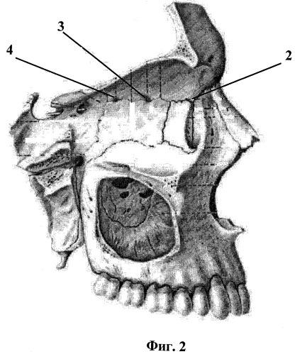 Окончательная остановка носового кровотечения при травме решетчатого лабиринта с использованием эндоскопической техники и инструмента