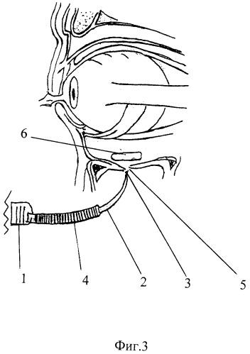 Способ устранения дефектов нижней стенки глазницы