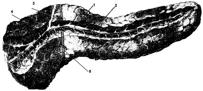 Способ хирургического лечения наружного свища головки поджелудочной железы