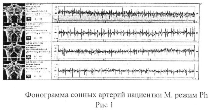 Способ экспресс-диагностики электронным стетоскопом littmann первопричины болевой патологии головы и шеи