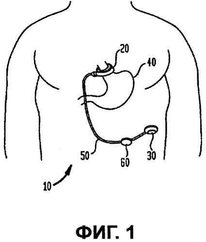 Энергоснабжение имплантируемых систем ограничения с применением температуры
