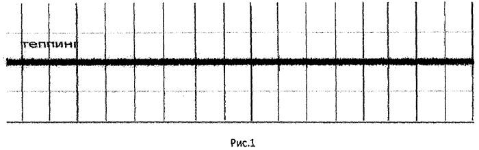 Способ реабилитации больных с афатическими нарушениями путем синхронизации внутренней речи и индивидуального темпо-ритма, с использованием метода регистрации микроартикуляции языка
