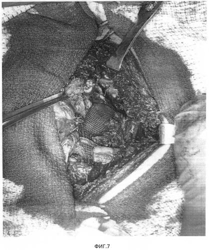 Способ хирургического лечения туберкулеза легких