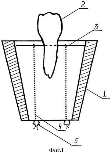 Способ и устройство для определения влияния герметиков на адгезионную прочность в соединении стоматологических материалов с тканями зуба