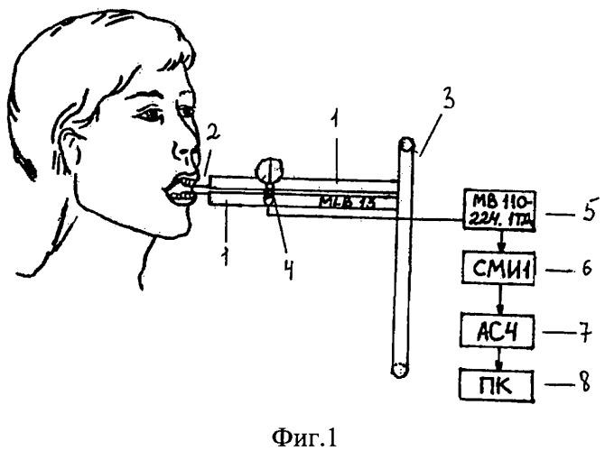 Устройство для определения давления зубов
