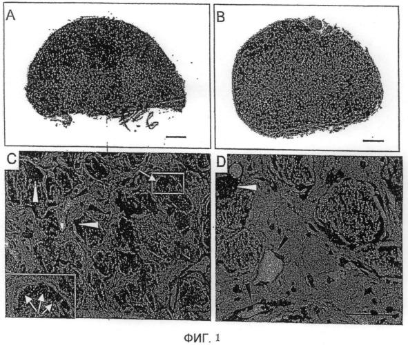 Комбинация крови и керамических частиц двухфазных фосфатов кальция