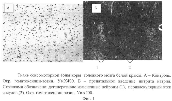 Способ моделирования гипоксической энцефалопатии в пренатальный период у мелких лабораторных животных