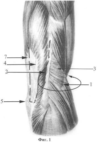 Способ восстановления активного сгибания в локтевом суставе у детей с вялыми параличами верхней конечности
