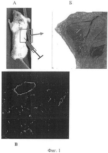 Способ стимуляции регенеративных процессов в ишемизированных тканях